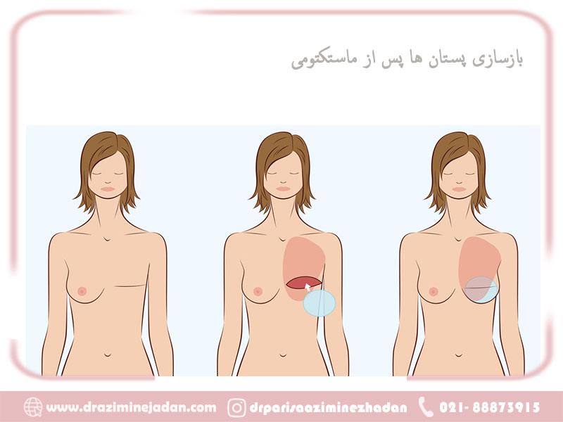 بازسازی پستان بعد از ماستکتومی