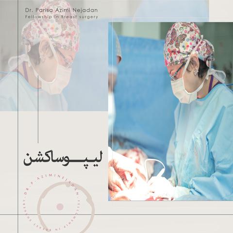 جراحی-لیپوساکشن