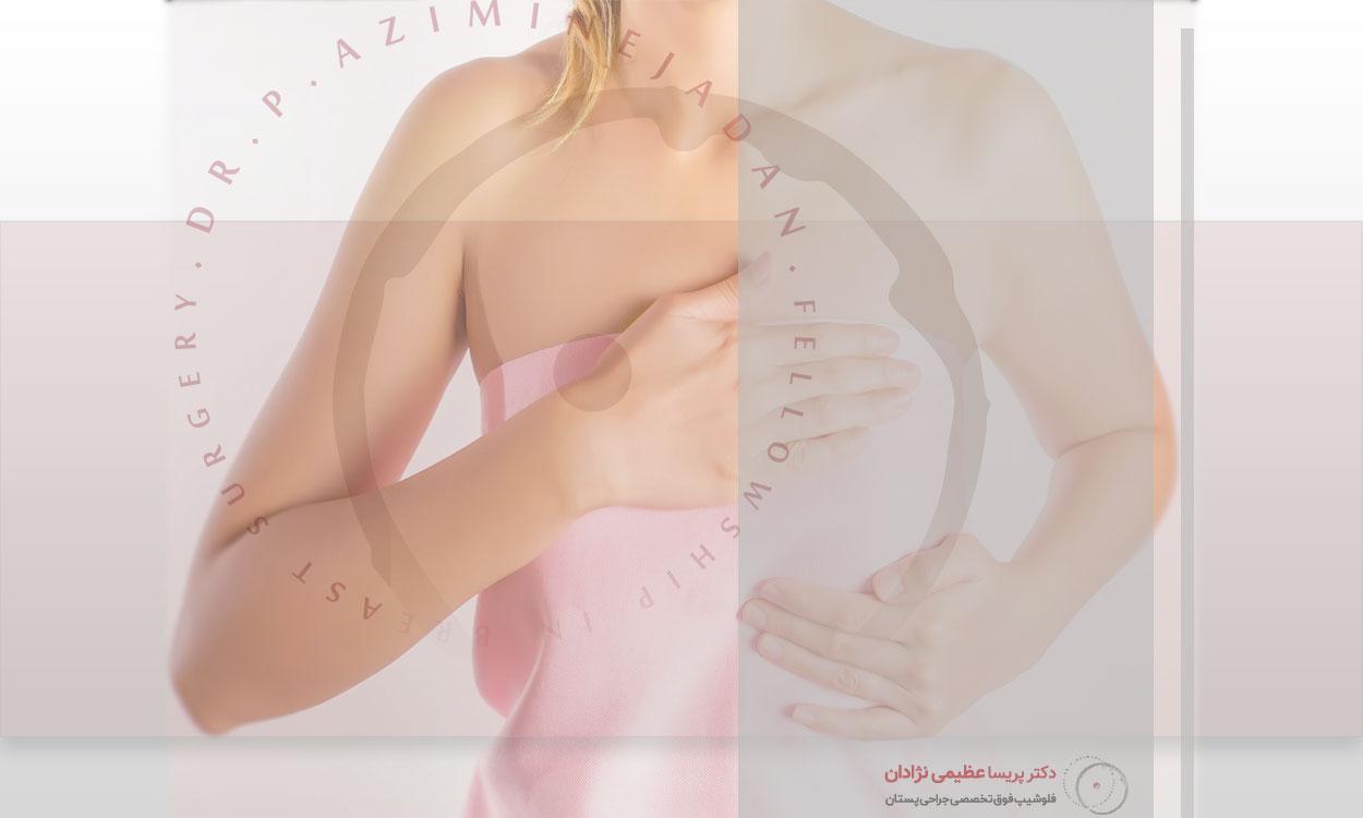ماموپلاستی-کاهشی