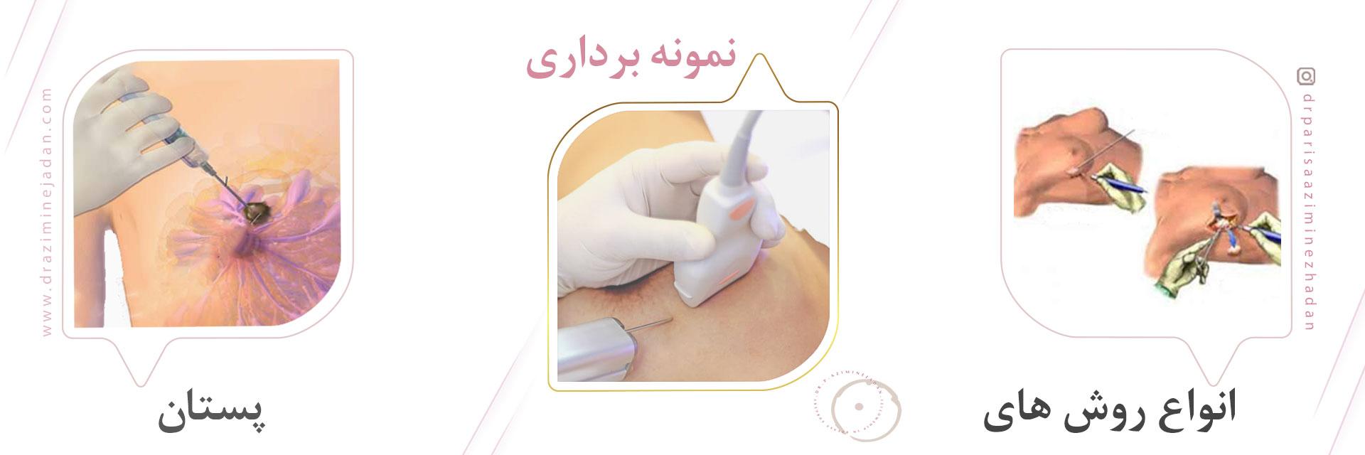 انواع روش های نمونه برداری پستان