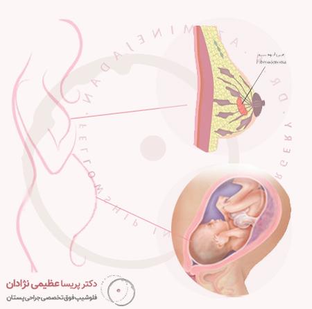 توده-فیبروآدنوم-در-بارداری