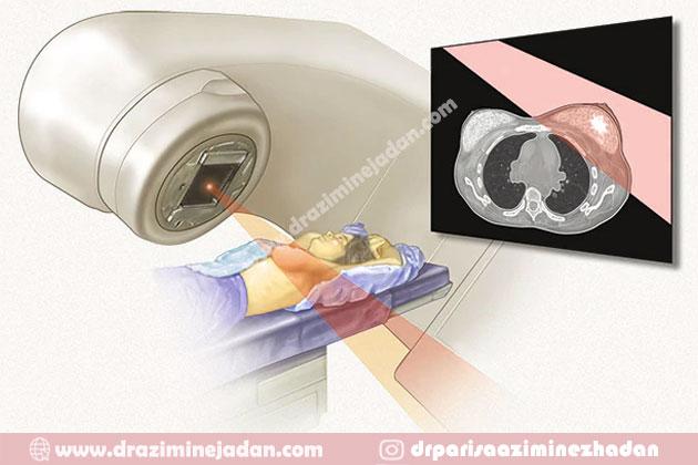 رادیوتراپی-در-درمان-سرطان-سینه
