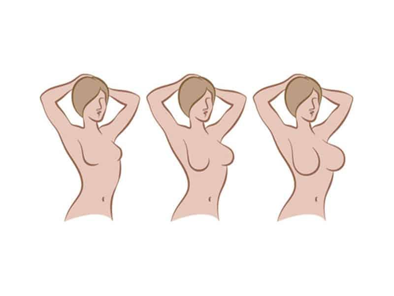 فرمدهی و بازسازی پستان