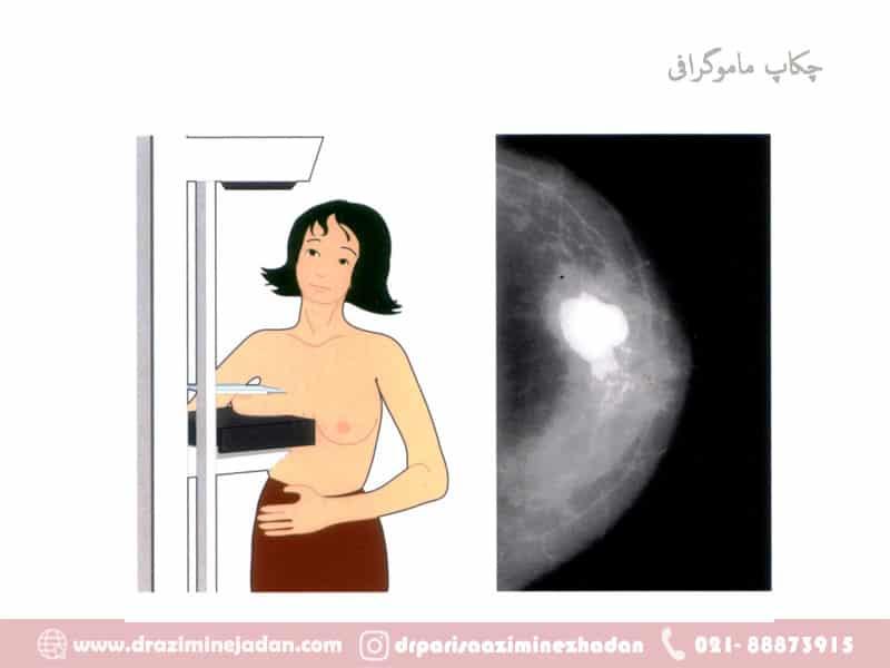 چکاپ ماموگرافی