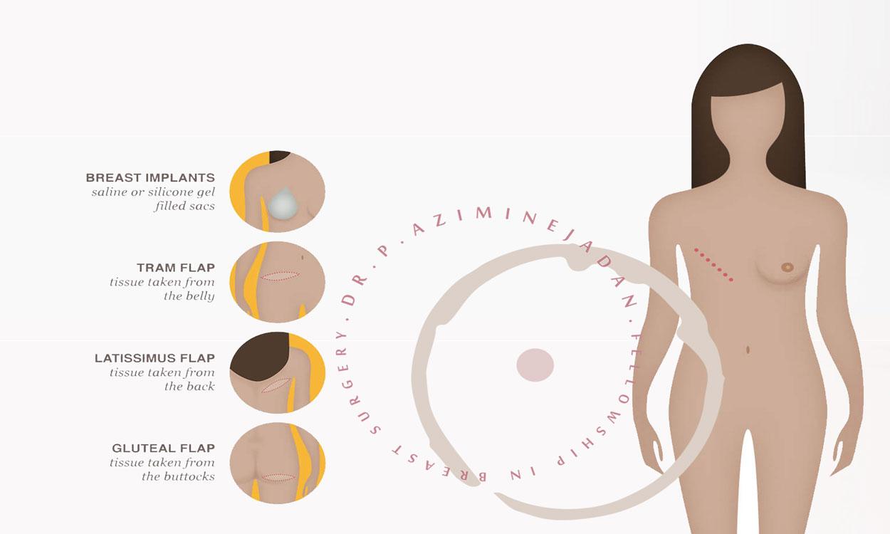 جراحی-سرطان-سینه