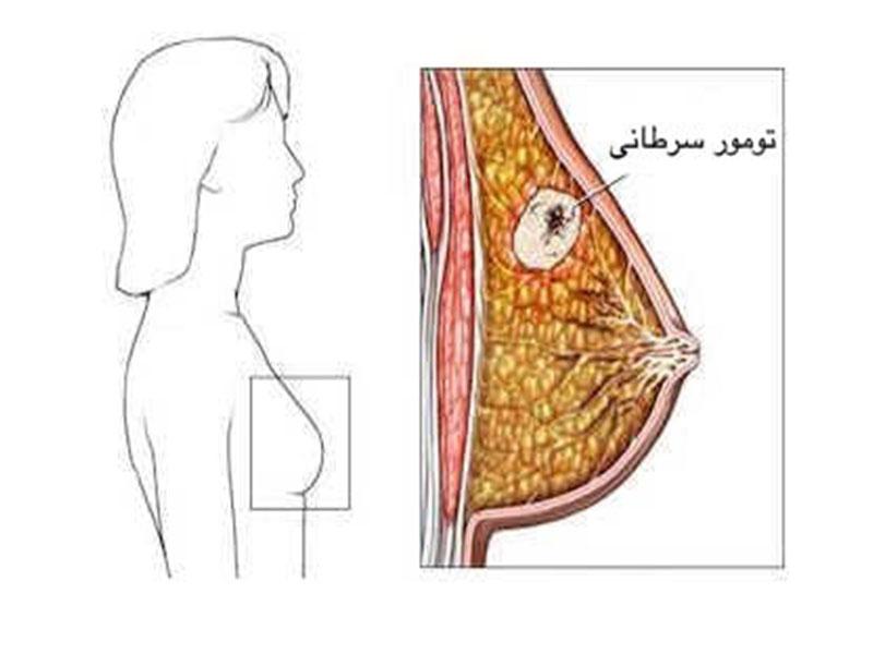 سرطان سینه؛ علل، علائم، تشخیص تا روش های درمان آن