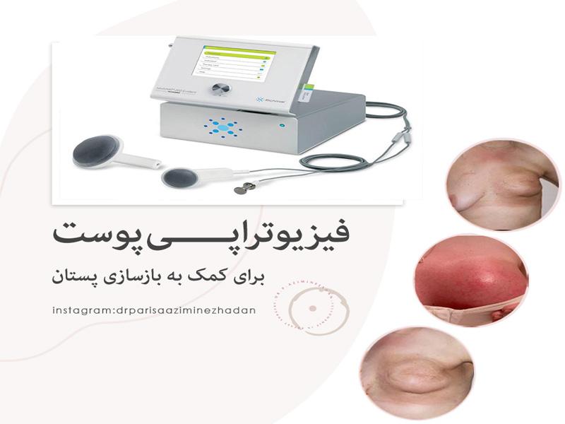 فیزیوتراپی پوست؛ آماده سازی پوست بعد و قبل بازسازی پستان