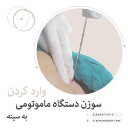 وارد کردن سوزن دستگاه ماموتومی به سینه